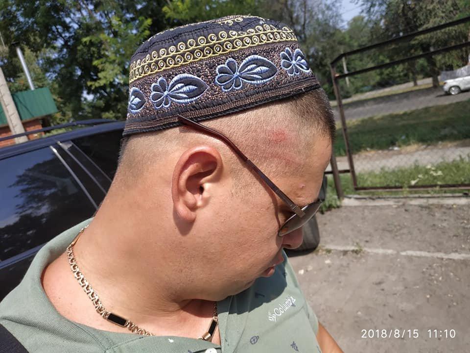 Каменской активист Евгений Найда: «Я получил удар в голову кулаком от заведующего и ответил ему двумя, может тремя ударами», фото-7