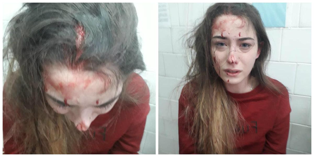 Оставила комментарий под фото: в Днепре 16-летней девушке разбили голову телефоном iPhone, фото-1