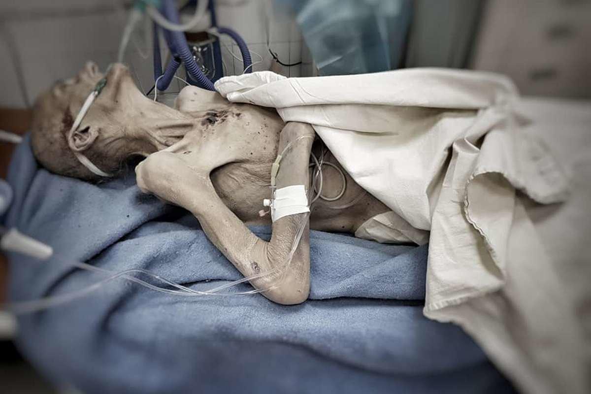 «На пороге смерти»: в Днепре сын привез крайне истощенную мать в больницу, фото-2