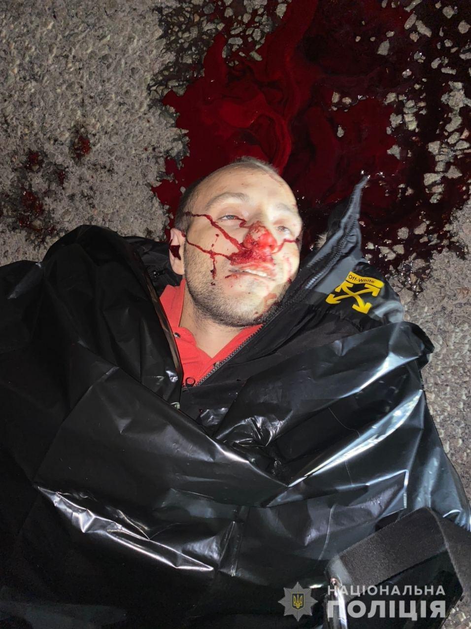Возле Каменского на дороге нашли мужчину в крови: помогите опознать (18+), фото-2