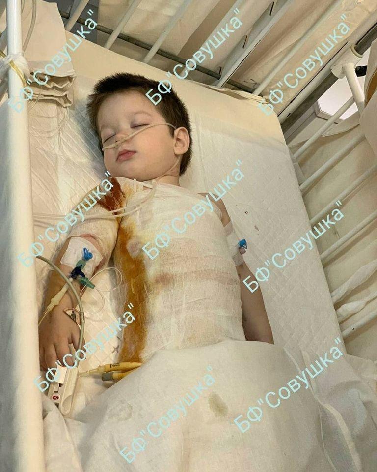 В Каменском на ребенка упала кастрюля горячего супа: его спасают в Днепре, фото-1